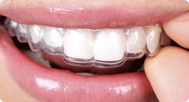 Ortodoncia con aparatos transparentes