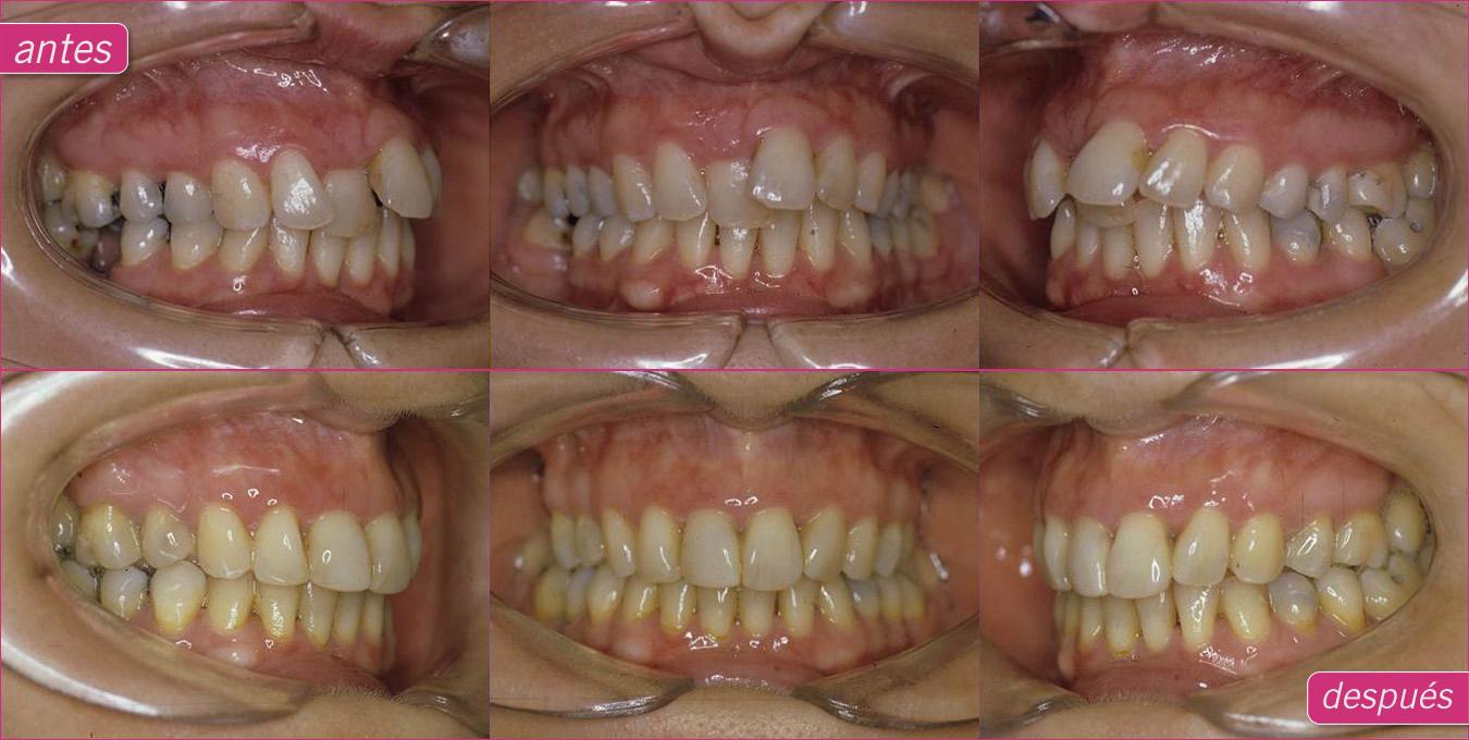 Ortodoncia Lingual o Invisible