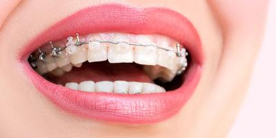 ¿Duelen los tratamientos de Ortodoncia?