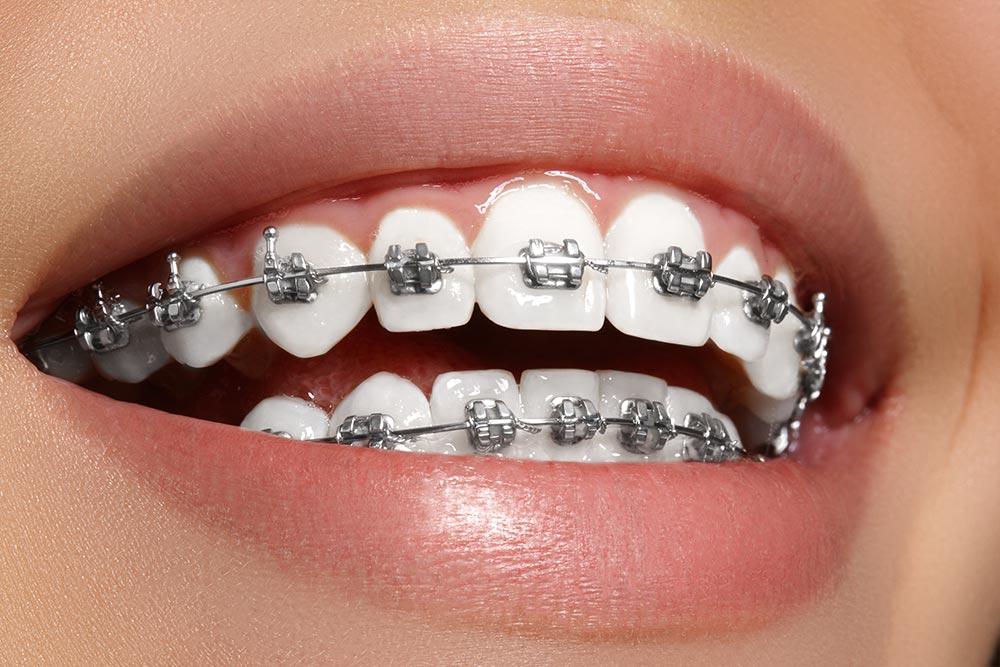 Ortodoncia convencional (niños y adultos)