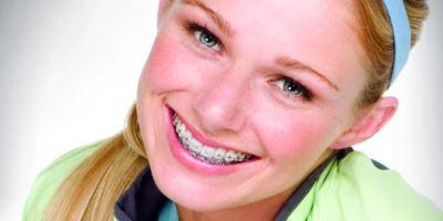 Problemas de llagas en la ortodoncia