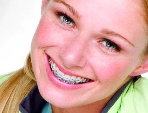 Problemas frecuentes durante los tratamientos de ortodoncia: llagas y rozaduras