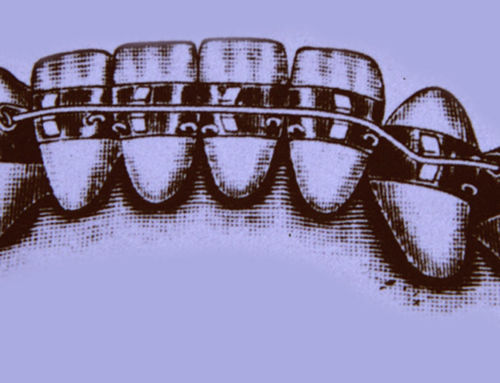 Breves apuntes sobre historia de la Ortodoncia (I)
