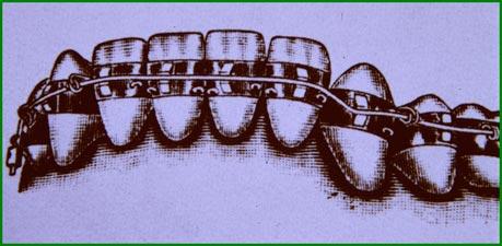 Primitivo aparato de arco de canto