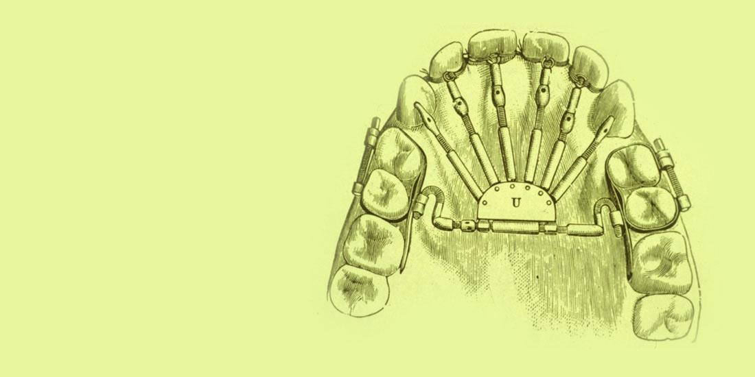 Breves apuntes sobre historia de la ortodoncia IV