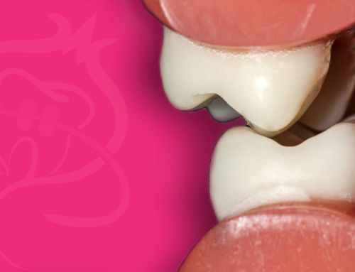 Conceptos básicos sobre oclusión en Ortodoncia