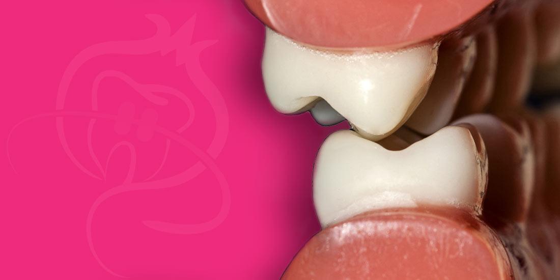 Conceptos básicos sobre oclusión estática y dinámica en Ortodoncia