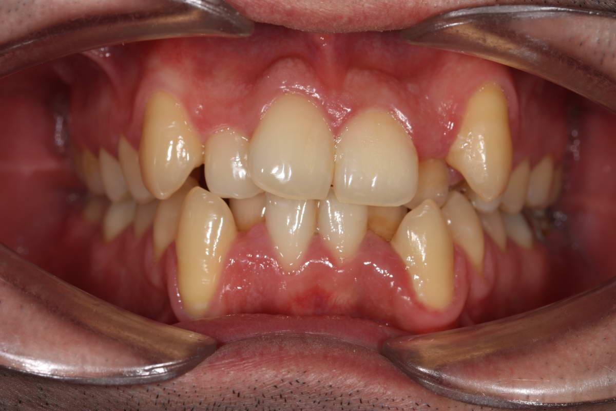 Apiñamiento dentario anterior